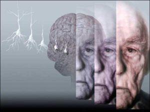 день борьбы с болезнью Альцгеймера
