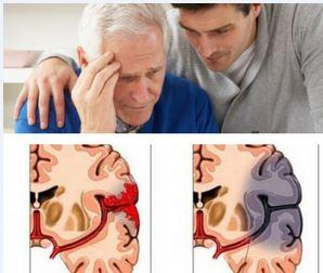Инсульт причина деменции